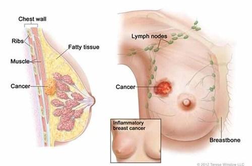 Nỗi ám ảnh vừa tránh thai vừa nơm nớp lo ung thư vú - 1