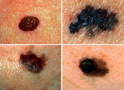 Cảnh báo mối nguy hiểm khi xuất hiện nốt ruồi trên cơ thể - 3