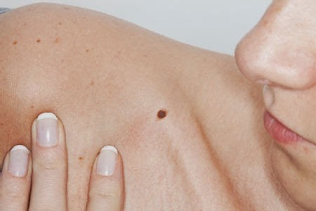Cảnh báo mối nguy hiểm khi xuất hiện nốt ruồi trên cơ thể - 5