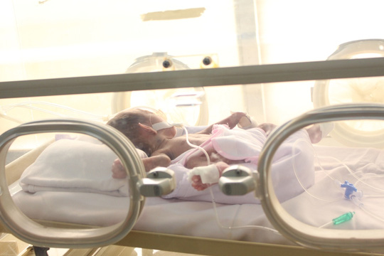 Bệnh viện ở Gia Lai cứu bé sơ sinh Campuchia nặng 700 g - 1