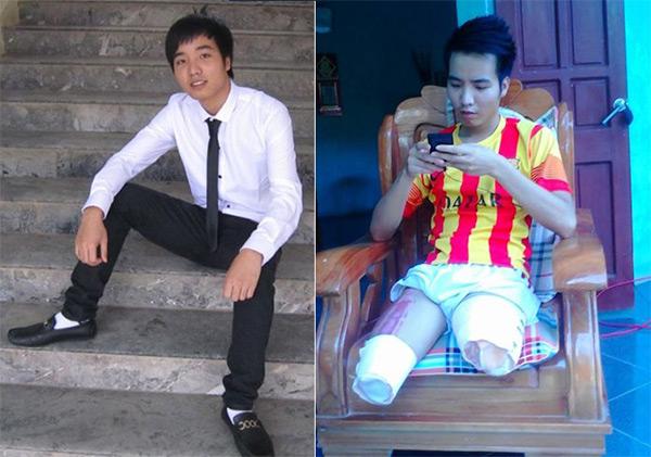 Tình yêu cổ tích của nữ sinh Việt với bạn trai cụt chân - 2
