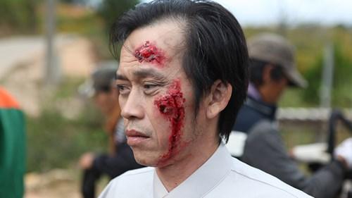 Phim Mặt nạ máu Hoài Linh - Bài toán khó mang tên Hoài Linh - 2