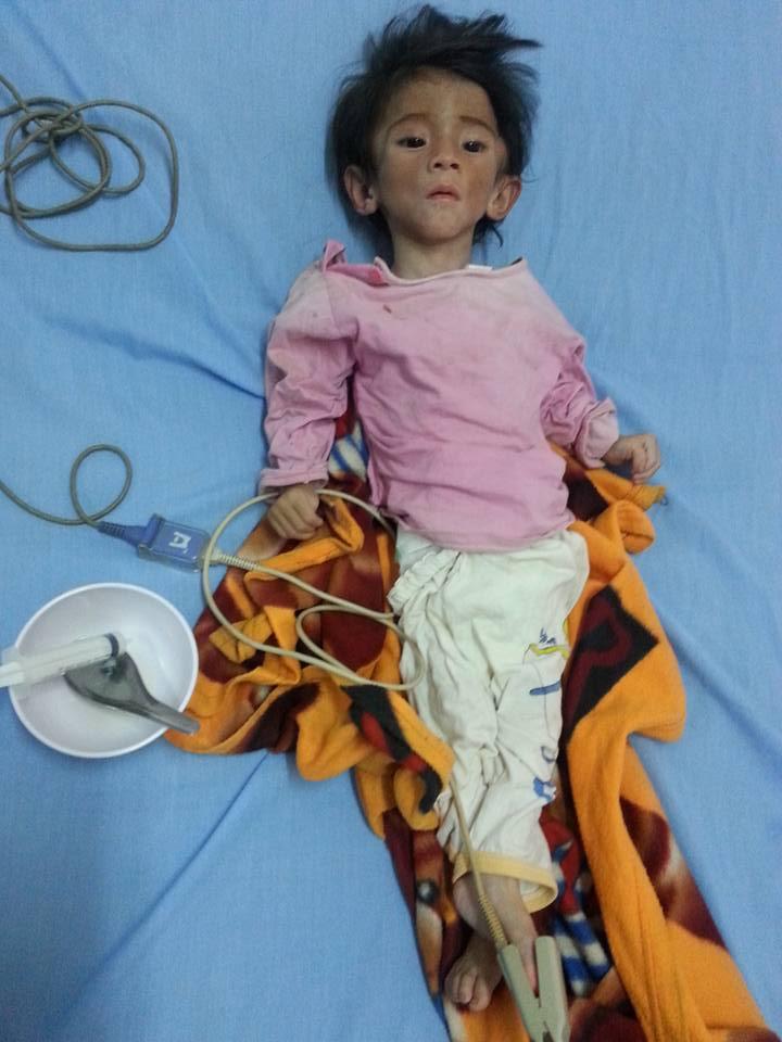 Xót thương bé gái 14 tháng tuổi chỉ nặng 3,5kg vì… đói - 3