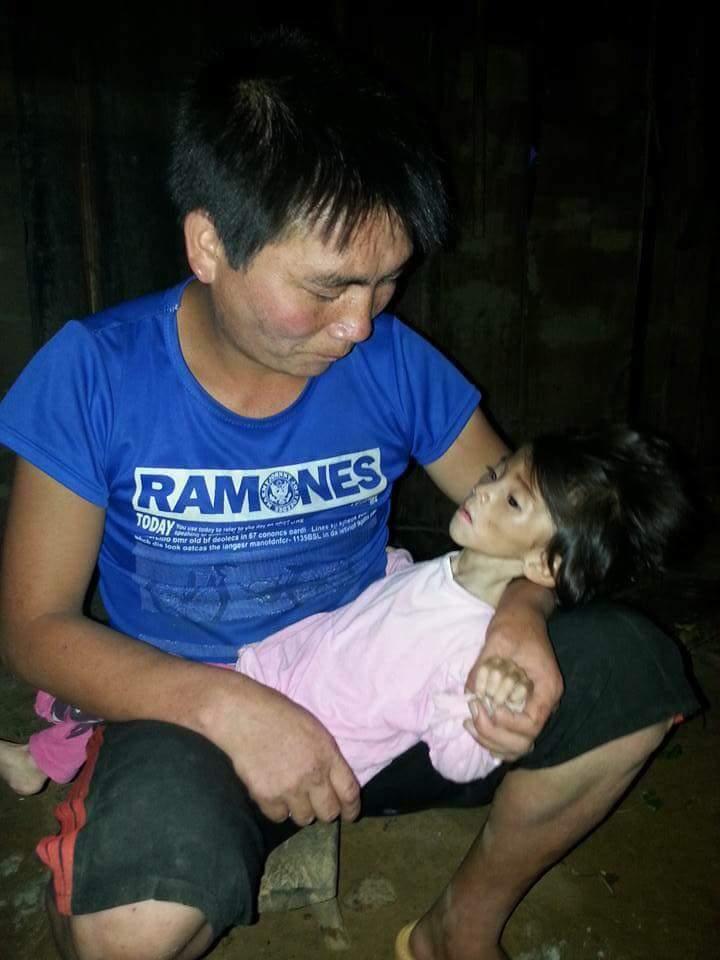 Xót thương bé gái 14 tháng tuổi chỉ nặng 3,5kg vì… đói - 1