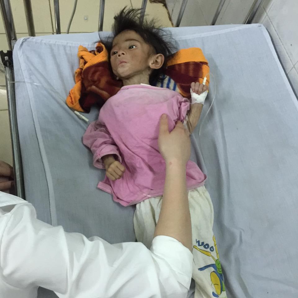 Xót thương bé gái 14 tháng tuổi chỉ nặng 3,5kg vì… đói - 5