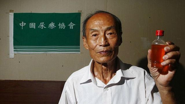 Cụ ông uống nước tiểu suốt 23 năm để chữa bệnh - 1