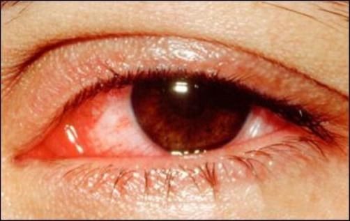Cảnh báo dịch đau mắt đỏ vào mùa: Cách phòng và chữa bệnh - 1