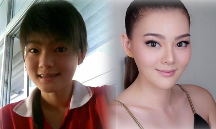 """7 mỹ nữ nổi tiếng Thái Lan đẹp nhờ """"đập mặt đi xây lại"""" - 7"""