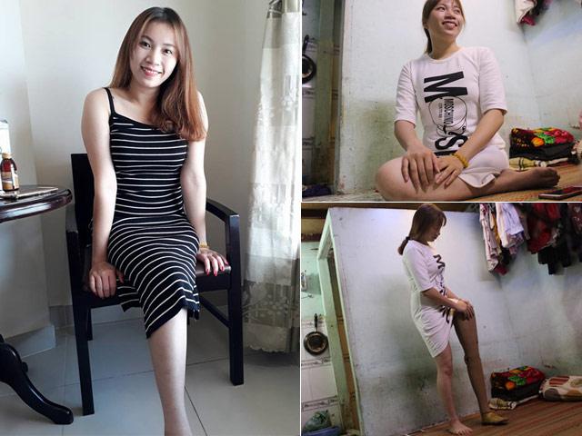 Sự thật về cô gái xinh đẹp mất một chân gây xôn xao