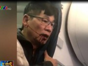 Tài chính - Bất động sản - Sau bê bối ném hành khách, cổ phiếu United Airlines giảm mạnh
