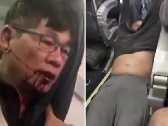 Video BS gốc Việt cự cãi trước khi bị kéo khỏi máy bay - 1
