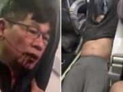 Thế giới - Video BS gốc Việt cự cãi trước khi bị kéo khỏi máy bay
