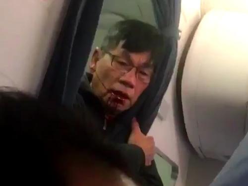 Bác sĩ gốc Việt bị kéo lê: Vỡ mũi, gãy 2 răng cửa - 2
