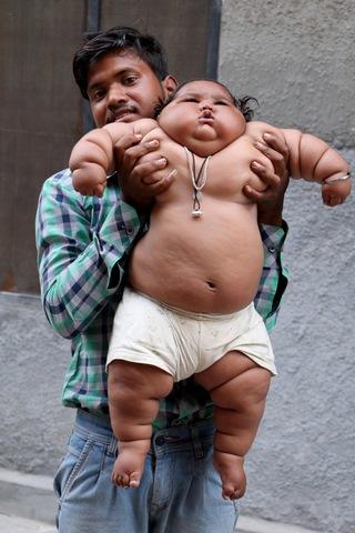 Bé gái Ấn Độ 8 tháng tuổi cân nặng bằng bé 6 tuổi - 4
