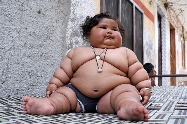 Bé gái Ấn Độ 8 tháng tuổi cân nặng bằng bé 6 tuổi - 1