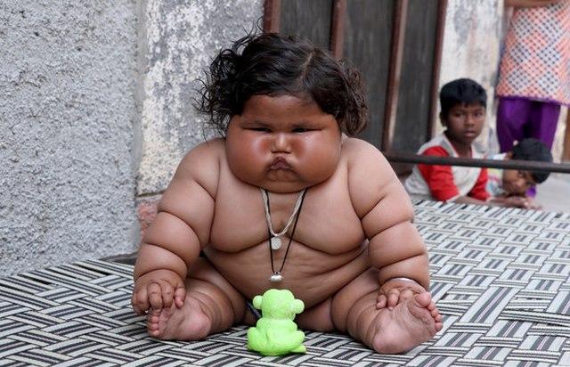 Bé gái Ấn Độ 8 tháng tuổi cân nặng bằng bé 6 tuổi - 3