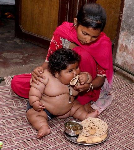 Bé gái Ấn Độ 8 tháng tuổi cân nặng bằng bé 6 tuổi - 5