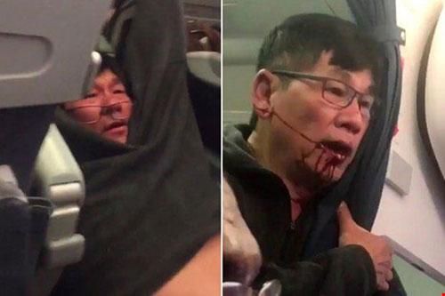 United Airlines đổi chính sách sau vụ kéo lê hành khách - 2