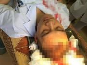 An ninh Xã hội - Hà Nội: Bác sĩ bị hành hung, máu đổ trên bệnh án