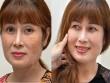 Viện thẩm mỹ Lavender ra mắt công nghệ trị dứt điểm nám Mela Extra