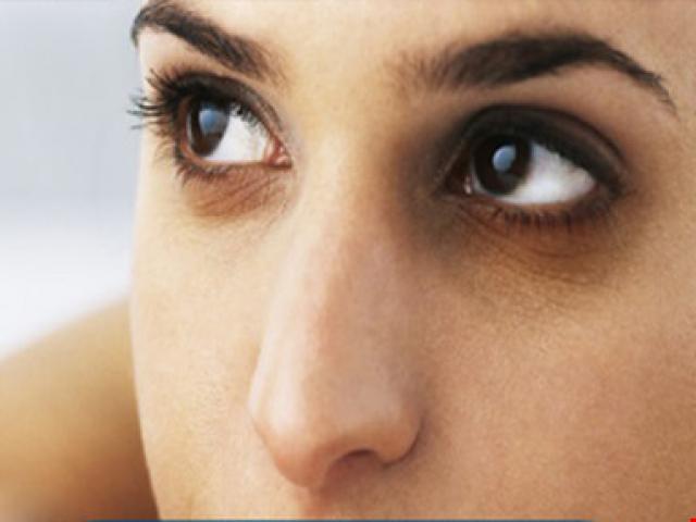 Sức khỏe đời sống - Quầng thâm ở mắt rất có thể là dấu hiệu bệnh gan, thận