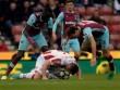 """Stoke – West Ham: Chạm mốc 40 """"thần thánh"""""""