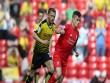 Nhận định bóng đá Watford – Liverpool: Cơ hội ngàn năm có một