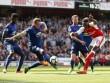 "Arsenal hạ MU: Thuốc giảm đau ""ngắn hạn"" cho Wenger"