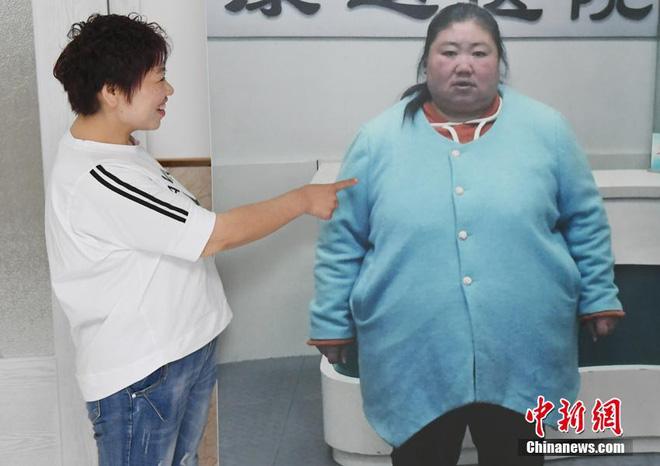 """Bị chồng bỏ, cô nàng Trung Quốc giảm 121 kg và nhận """"quả ngọt"""" - 1"""