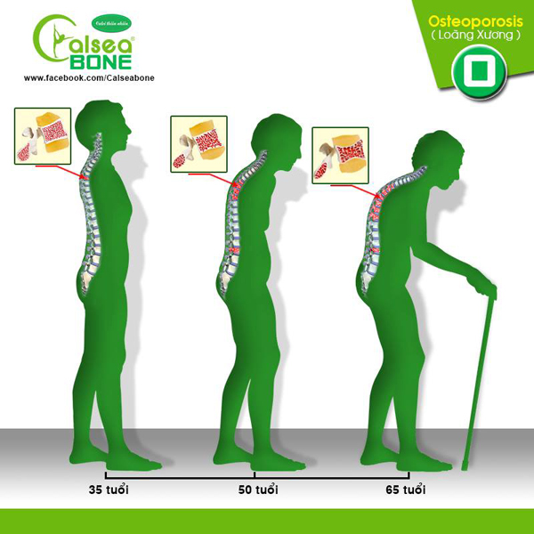 Loãng xương – phòng bệnh ngay trước khi quá muộn! - 1
