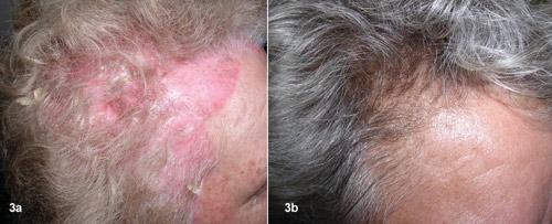 Vảy nến da đầu: một liệu pháp tự nhiên đầy hứa hẹn - 1