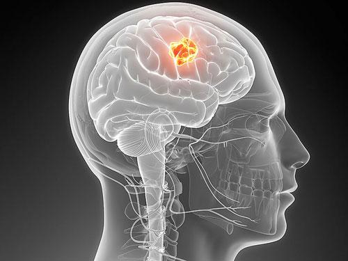 Khả năng chữa ung thư não từ virus Zika - 1
