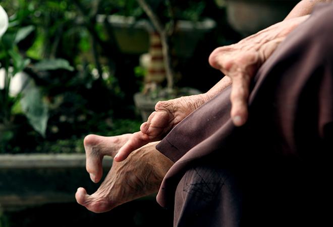 Kì lạ gia đình tay một ngón, chân như chân chim ở Hà Nam - 3