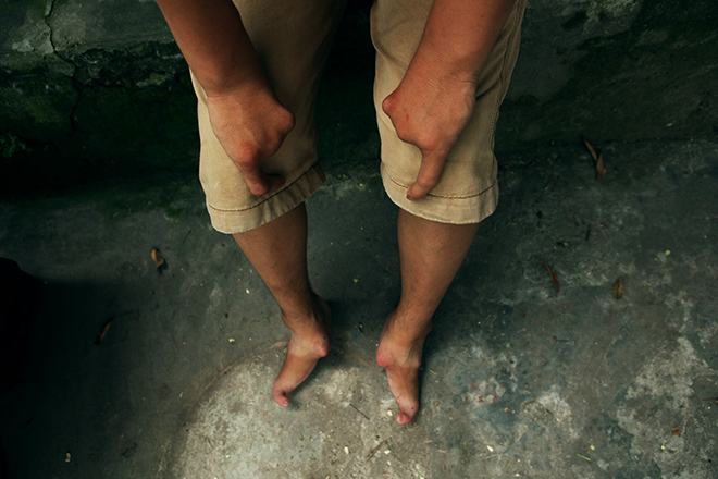 Kì lạ gia đình tay một ngón, chân như chân chim ở Hà Nam - 10
