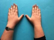 Nhìn chiều dài ngón tay đoán bệnh ''chuẩn không cần chỉnh''