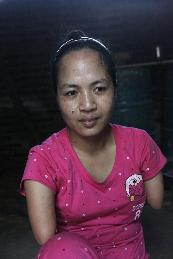 Cảm động mẹ cụt tay, khèo chân chăm con nhỏ ở Hà Nội - 1