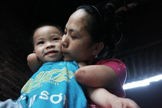 Cảm động mẹ cụt tay, khèo chân chăm con nhỏ ở Hà Nội - 2