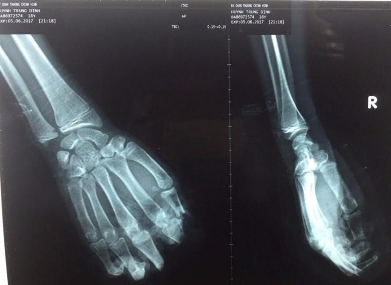 Bỏ quên 4 ngón tay đứt lìa trong xưởng cưa - 1