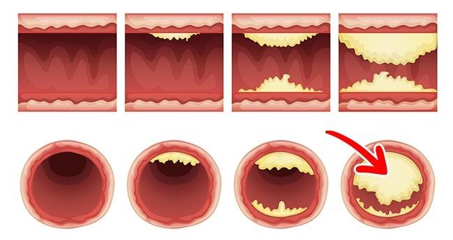 Quan niệm ăn trứng nhiều có hại xưa rồi, 2 quả mỗi ngày cho lợi ích thần kỳ - 5