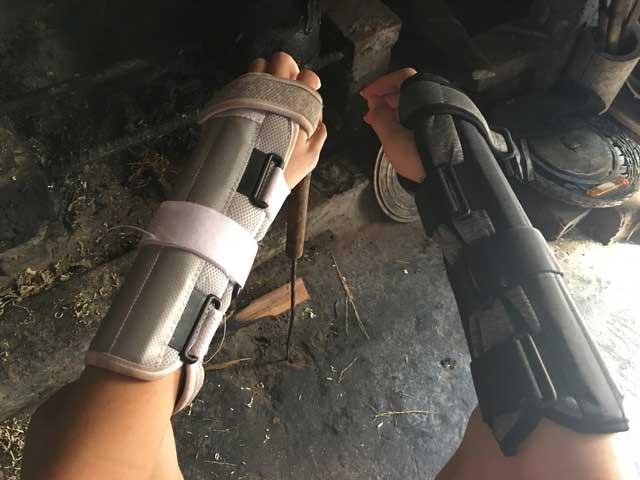 Vụ chồng xích cổ vợ ở Thái Bình: Người con trai bị bố bóp rạn xương tay - 2