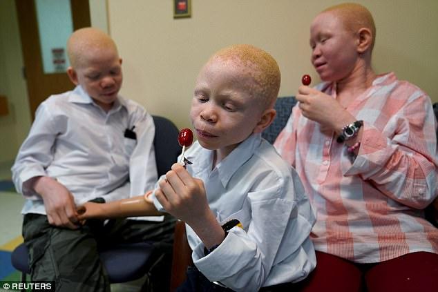 Trẻ em bạch tạng bị chặt tay ở Tanzania được đưa tới Mỹ - 5