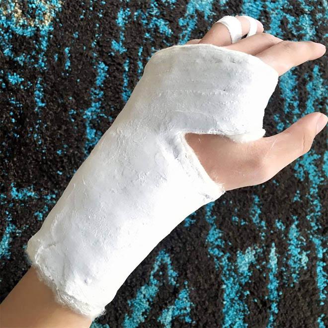 Cựu thành viên ST bị gãy tay trong lúc tập luyện - 1