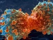 Sức khỏe đời sống - Bất cứ ai cũng phải nhớ 9 dấu hiệu này của bệnh ung thư