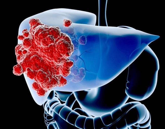 5 bệnh chết chóc ở nam giới thường phát hiện rất trễ - 2