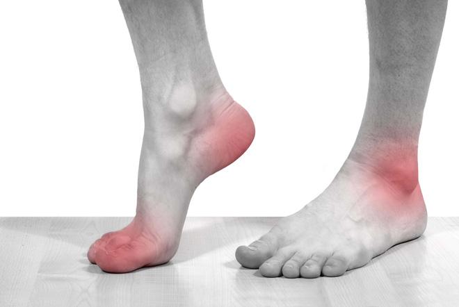Chớ dại bỏ qua triệu chứng âm thầm bệnh sỏi thận - 1