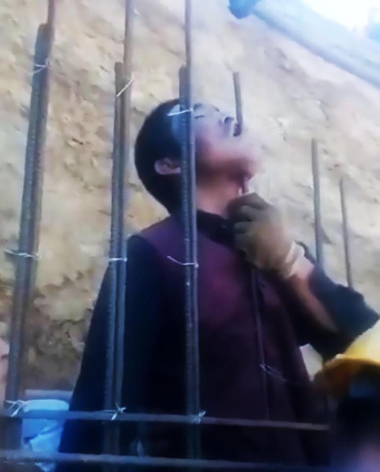 Kinh dị cảnh công nhân TQ bị thanh thép chọc xuyên hàm - 1