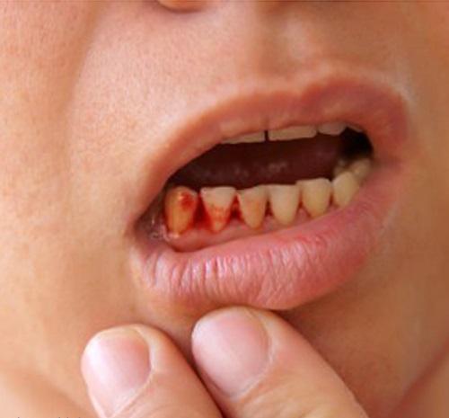 Mệt mỏi, chảy máu chân răng: dấu hiệu của bệnh cực kỳ nguy hiểm - 1