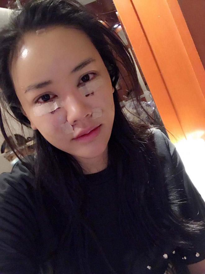 """""""Thánh nữ Bolero"""" Jang Mi có choáng khi Maya phẫu thuật mặt y hệt? - 7"""