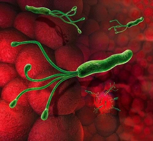 Đừng để khuẩn này âm thầm gây ung thư dạ dày, cần loại bỏ ngay - 2