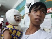 Bé 9 tháng tuổi bị biến dạng mặt vì xe tập đi lao vào bếp lửa
